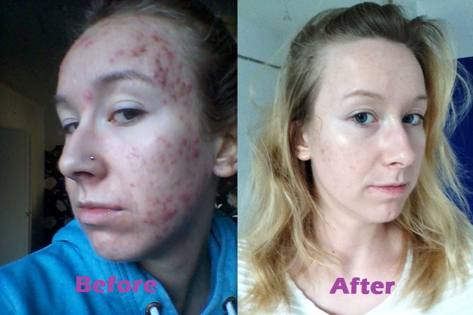 Roaccutane diary: week 25 | Acne Free New Me